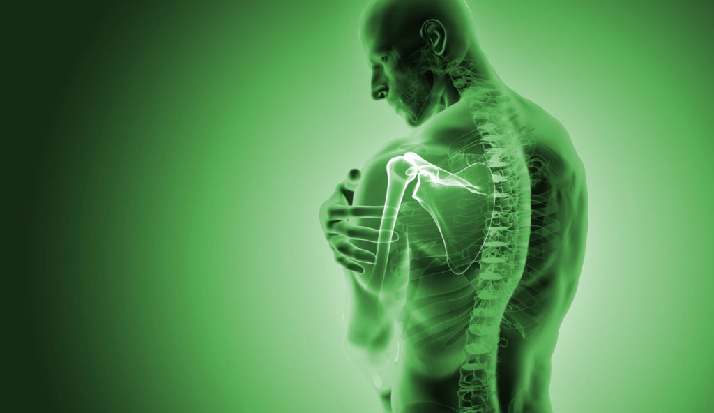 Rheuma-Therapie